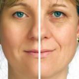 Acupuncture et soin du visage