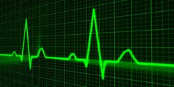 rsz_f463e8f8cc_electrocardiogramme_publicdomainpictures-pixabay_com-dp